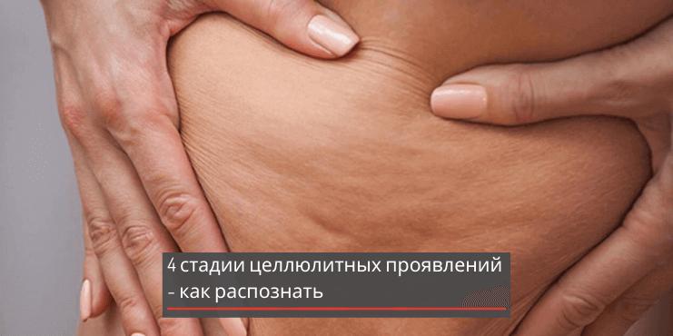 антицеллюлитный-массаж-стадии-проявления