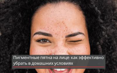 Пигментные пятна на лице: как эффективно убрать в домашних условиях